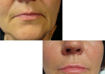 Nasolabial folds, sad mouth corners and lip contouring with fillers
