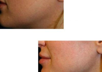 Jawline definition using fillers with cannula