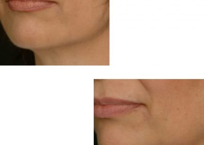 Pre jowl correction and jawline definition using fillers