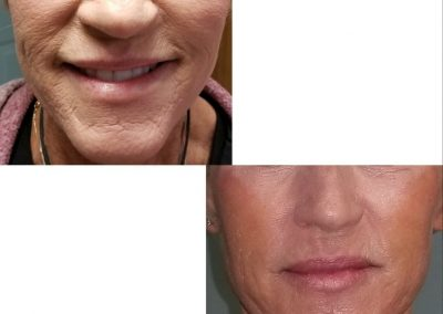 Lips, jawlines, jowls and cheeks contouring. Amazing results!