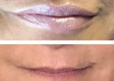 Lips volume enhancement, borders and Cupid's Bows definition