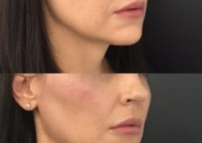 Cheek enhancement with fillers