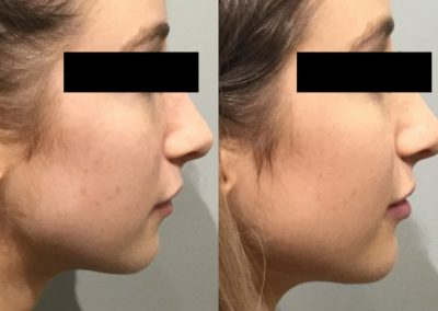 Chin projection by fillers