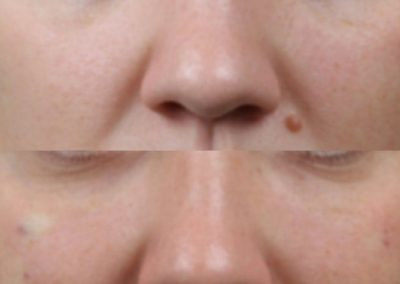 Tear troughs and dark circles immediate results after fillers injection by cannula. Check right cheek cannula entry site