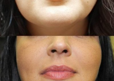 Nasolabial folds and mouth corners rejuvenation by fillers