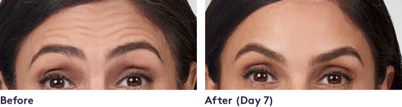 Facial Fillers SUBTLE RESULTS in moderate to severe forehead lines