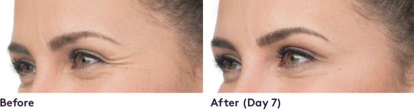 Facial Fillers NOTICEABLE RESULTS in moderate to severe crow's feet lines