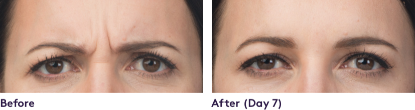 Facial Fillers REAL RESULTS in moderate to severe frown lines