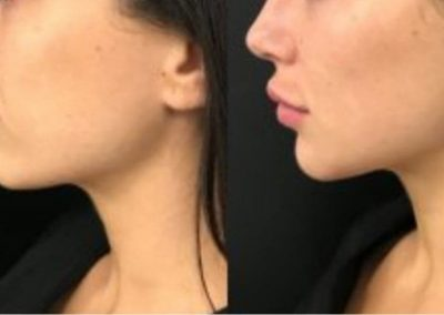 Cheek and jaw contouring with fillers