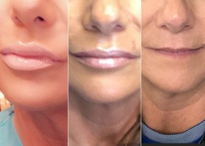 Lips enhancement after 1 then 2 syringes of fillers over 3 weeks period. It is pure natural beauty