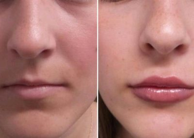 Lips enhancement and Cupid's Bow definition